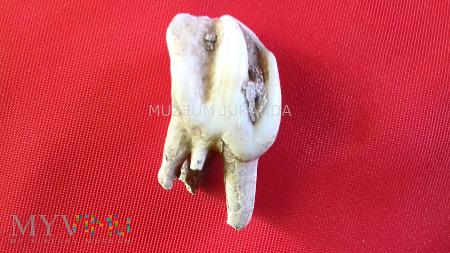 Ząb (2)